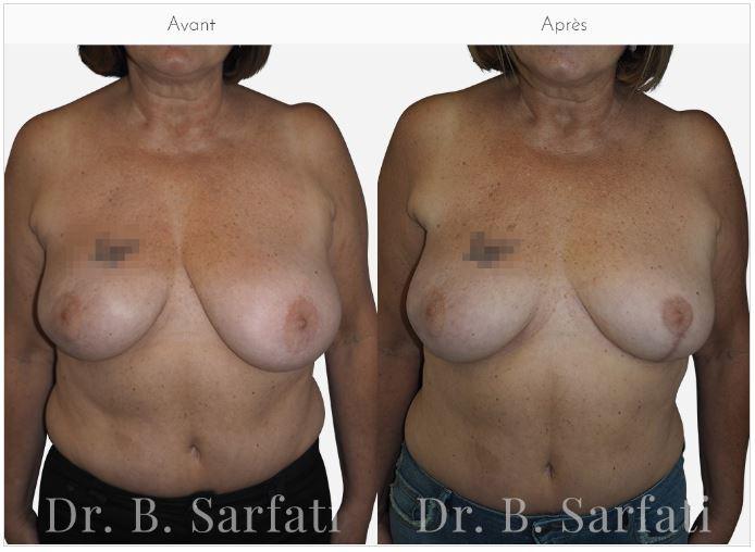 asymétrie mammaire dr sarfati paris