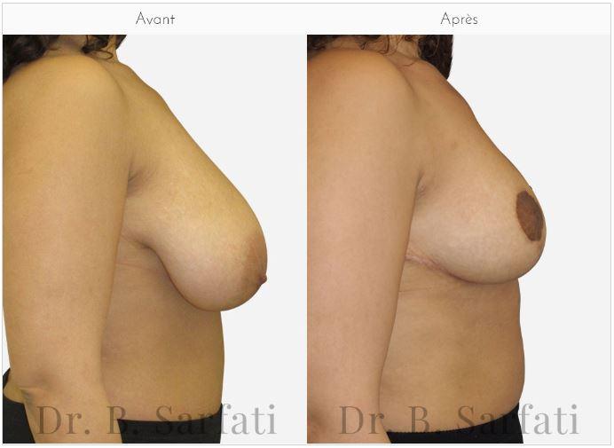 ptôse mammaire dr sarfati paris
