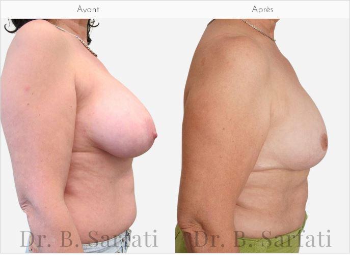 réduction mammaire dr sarfati paris