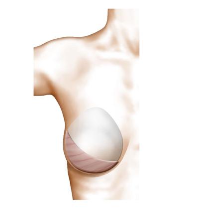 la reconstruction mammaire par lambeau du grand dorsal
