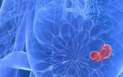 Les types de biopsies mammaires diagnostic du cancer du sein