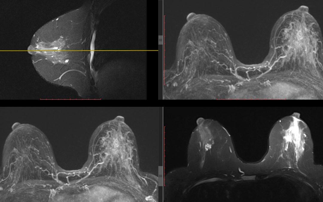Cancer du sein: L'IRM un examen clé dans la stratégie thérapeutique