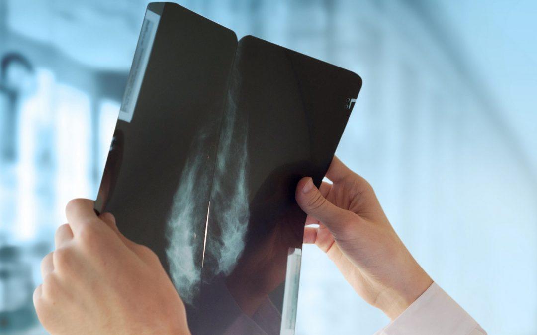 Le cancer du sein controlatéral: définition, facteurs de risque et traitements