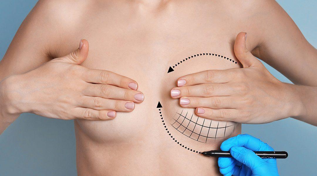 L'augmentation mammaire sans prothèse
