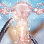 Le fibrome utérin est-il dangereux?