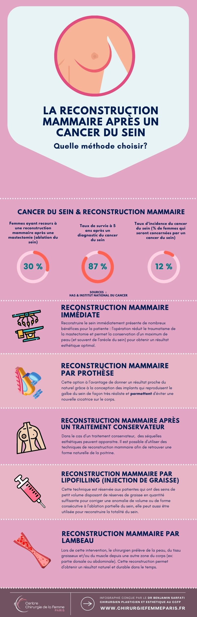 Infographie les types de reconstruction mammaire